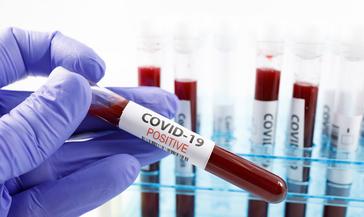 Сегодня из инфекционки Норильска выписаны двое, новых заболевших COVID-19 нет