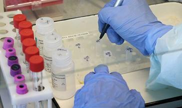 449 случаев заболевания коронавирусом зарегистрировано сегодня по Красноярскому краю. В Норильске новых заболевших нет